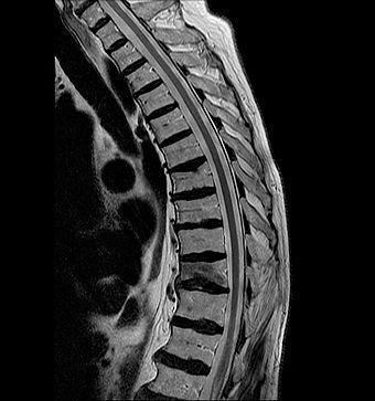Spine MRI Scan